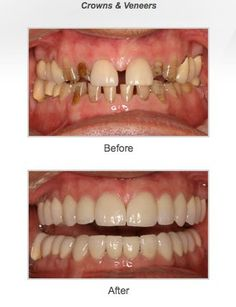General Dentistry, Cosmetic dentistry, Dentures, Dental Implants.