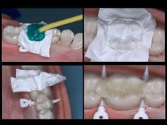 Has anyone ever tired the Occlusal Stamp Technique for an MOD Composite? Old technique done by many but I've only seen it done on occlusal caries and usually utilizing a clear vps. This variation allows it to be used for most any filling provided the pre-op anatomy of the tooth is intact. Blockout resin is flowed across the intact occlusal surface and indexed over the cusp tips prior to prepping. http://www.dentaltown.com/MessageBoard/thread.aspx?s=2&f=216&t=234761&v=1.