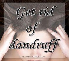 10 Best Ways to get rid of Dandruff - Home Remedies - ♥ IndianBeautySpot.Com ♥