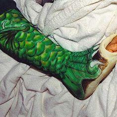 painted leg casts -