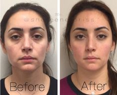 Our Guide to Facial Fillers, From Treatment Options to Recovery Time - Allure surgery rinoplastia Everything You've Ever Wanted to Know About Fillers Under Eye Fillers, Cheek Fillers, Botox Fillers, Dermal Fillers, Fillers For Face, Facial Treatment, Skin Treatments, Cosmetic Treatments, Relleno Facial
