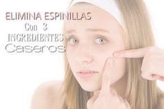 CONSEJOS PARA CHICAS : ELIMINA ESPINILLAS CON INGREDIENTES CASEROS