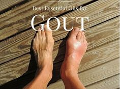 The best essential oils for gout and the symptoms. doTERRA oils are natural and effective, lemon, cypress, frankincense, rosemary. More