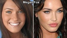 22 Celebs Plastic Surgery Aftermath. What Do You Think About Lyndsey Lohan...?