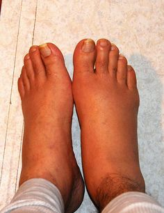 Gout can cause excruciating pains and swelling. Best treatment is 2 teaspoons of Black Cherry concentrate Juice with one tea spoon of natural Apple Cider Vinegar mixed with glass full of water first thing in the morning every day until healed.     Can we expect Nature to cure us with herbs, spices, vitamins, and minerals when we are slowly destroying the world?