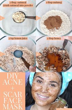 This DIY face mask for acne & scars uses honey and nutmeg to help clear pimples and lighten acne scars. It& easy to make with pantry ingredients! The post Best DIY Face Mask for Acne & Scars Best Diy Face Mask, Homemade Face Masks, Diy Face Mask Easy, Diy Beauty Face Mask, How To Clear Pimples, Diy Masque, Scar Treatment, Face Treatments For Acne, Acne Spot Treatment Diy