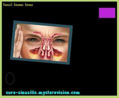 Tonsil Stones Sinus 140523 - Cure Sinusitis