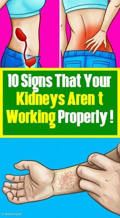 4 Signs That Your Kidneys Aren't Working Properly. Your kidneys and circulatory system depend on each other. The kidneys have small ne. Health And Fitness Tips, Health And Beauty, Health And Wellness, Women's Health, Health Care, Wellness Tips, Health Facts, Mental Health, Wellness Quotes