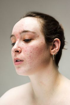 Sophie Harris-Taylor breaks down the stigmas of skin issues with photo series Epidermis Body Photography, People Photography, Portrait Photography, Body Positivity Photography, Real Bodies, Raw Photo, Raw Beauty, Foto Art, Portrait Inspiration