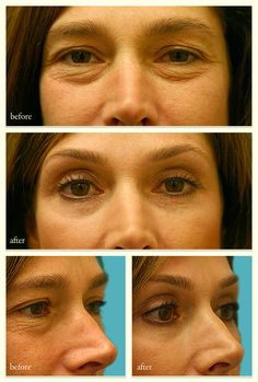 Juvederm Filler For Under Eyes W Before Amp After Pictures