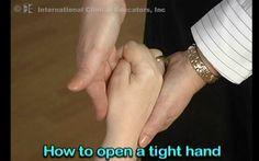 Facilitating finger extension in a hand w/ flexor tone