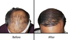 As hair transplantation technology becomes more advanced with natural looking results. leading Hair transplant Clinic in Hyderabad, Oliva cosmetic surgery  offering hair regrowth and Hair restoration surgery using FUE and FUT procedures to get permanent solutions For Baldness.