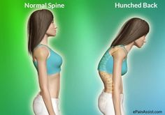 6 Exercises To Fix Your Hunched Back
