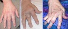Arthrite_rhumatoide rheuma hände