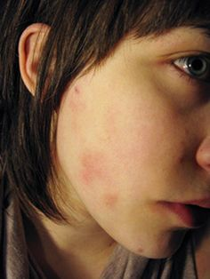Facial Eczema - helpful article and comments