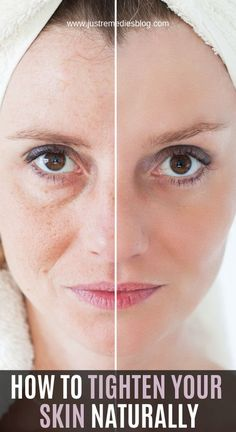 As you get older, your skin naturally becomes less elastic and more fragile. Decreased production of natural oils dries your skin and makes it appear more wrinkled. Fat in the deeper layers of your… Natural Cures, Natural Oils, Natural Health, Natural Wrinkle Remedies, Natural Treatments, Herbal Remedies, Health Remedies, Cold Remedies, Bloating Remedies