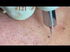#121   Acne Treatment Huong beauty - YouTube Abandoned Cars, Acne Treatment, Youtube, Beauty, Wood, Pimple, Beauty Illustration, Youtubers