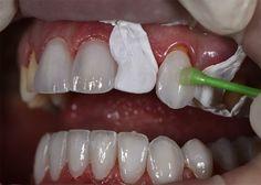 Chỉnh hình răng thưa - cách nào cho hiệu quả tốt nhất?