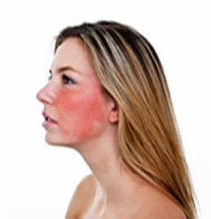 One of the common problems is redness on face.learn How To Get Rid Of Redness On Face.Visit our site and get all the latest remedies for redness on face. Home Remedies For Rosacea, Herbal Remedies, Health Remedies, Redness On Face, Anti Redness, Essential Oils For Rosacea, Skin Treatments, Acne Rosacea, Natural Remedies