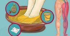 Ισχιαλγία: Άμεση Ανακούφιση Από Τον Πόνο Σε 10 Μόλις Λεπτά!
