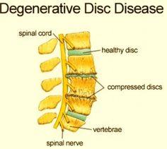 Degenerative Disc Disease Treatment in India at Best Hospitals Lumbar Disc, Neck Problems, Spinal Nerve, Scoliosis Exercises, Degenerative Disc Disease, Spine Surgery, Spinal Stenosis, Best Hospitals, Sciatica Pain