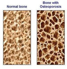 Improving bone density through Ayurveda