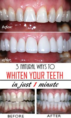 3 natural & homemade solutions to get whiter teeth in just a few minutes! Read t… 3 natural & homemade solutions to get whiter teeth in just a few minutes! Read this tutorial and get rid of yellow teeth forever! Teeth Whitening Remedies, Natural Teeth Whitening, Whitening Kit, Fast Teeth Whitening, Teeth Care, Skin Care, Get Whiter Teeth, Clean Teeth, Beauty Hacks For Teens