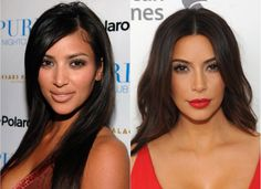 Kim Kardashian Plastic Surgery - Before and After