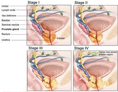 Prostate_Cancer-4-stages-