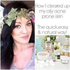 How I healed my skin the easy & natural way! Simple & affordable steps to better skin.
