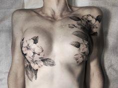 Double mastectomy resconstruction