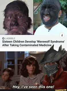 O LADBIBLE Sixteen Children Develop 'Werewolf Syndrome' After Taking Contaminated Medicine f Hey, I've seen this one! Funny Gaming Memes, Stupid Funny Memes, Funny Relatable Memes, Geeks, Bloodborne Art, Dark Souls 2, Soul Game, Funny Memes About Girls, Funny Cards