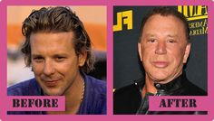 12-eye-catching-celebs-destroyed-by-plastic-surgery_4.jpg