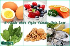Foods that fight female hair loss. Pcos Hair Loss, Foods For Hair Loss, Hair Loss Women, Hair Fall Remedy, Hair Loss Reasons, Hair Detox, Unhealthy Diet, Hair Loss Remedies, Prevent Hair Loss