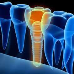 Could a Metal Allergy Keep You From Getting a Dental Implant? : Could a Metal Allergy Keep You From Getting a Dental Implant?