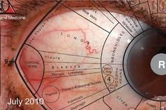 Sclerology (the study of the markings in the 'whites' of the eyes to determine health imbalances) explained Reiki, Iridology Chart, Health And Wellness, Health Tips, Health Chart, Eye Chart, Eye Color Chart, Healthy Eyes, Chinese Medicine