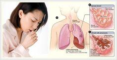 WASPADA Penyakit TBC mengancam jiwa anda ! Penularan penyakit ini sangatlah cepat, maka ketahuilah Ciri-Ciri Mengidap Penyakit TBC sejak dini.