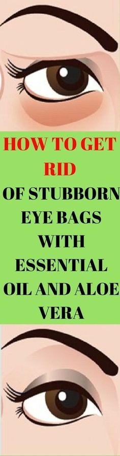 HOW TO GET RID OF STUBBORN EYE BAGS WITH ESSENTIAL OIL AND ALOE VERA #getridofbagsundereyes