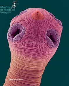 SEM of a dog tapeworm scolex (Dipylidium caninum), mag. 60x (at 24 x 36 mm). The scolex (head) has suckers (acetabula) which attach to the host, usually a dog or cat. A dog tapeworm has no digestive system, but absorbs partially digested food from the host`s intestines. It may be transmitted to humans and cause diarrhea, weight loss, and abdominal pain. © Dennis Kunkel Microscopy, Inc. / Phototake