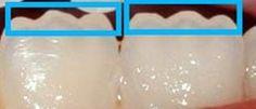mamelões dos incisivos