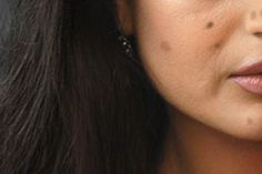 How To Get Rid Of Dark Spots On Face