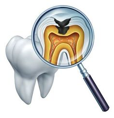 TOOTH DECAY is the destruction of your tooth enamel, the hard, outer layer of your teeth. The best defense to tooth decay is brush at least twice a day, clean between your teeth daily with floss, and eat nutritious and balanced meals and limit snacking.
