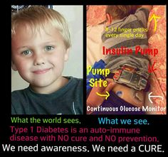 Facebook page- Saving Luke - Luke and Jedi - Fighting Type 1 Diabetes Together