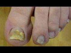 Tratament pentru Onicomicoza ,Ciuperca la Unghii sau Fung Sau unghii bolnave - YouTube Soap, Youtube, Bar Soap, Youtubers, Soaps, Youtube Movies