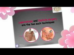 Wynn Group - Causes, Symptoms and Treatment for Ectopic Pregnancy