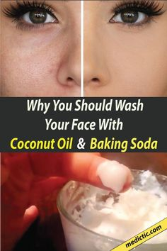 This baking soda and coconut oil face mask for acne scars can deeply cleanse the skin, exfoliate, and forestall acne beat one! You've undoubtedly seen tons of baking soda and coconut oil face mask recipes everywhere Baking With Coconut Oil, Coconut Oil For Face, Bio Cosmetics, Baking Soda Shampoo, Best Skincare Products, Face Products, Beauty Tips For Face, Face Tips, Face Beauty