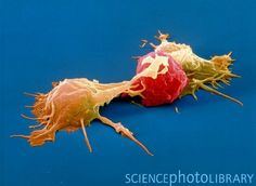NK cell vs cancer cell