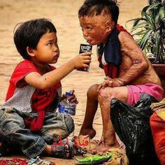 "True love…….I WONDER IF THIS LITTLE BOY WAS A VICTIM OF A FIRE OR NAPALM OR A LEPER ……….OH HOW AWFUL……GOD BLESS YOU………..AND GOD BLESS YOUR LITTLE ""HELPER""…………..ccp"