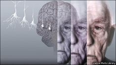 Conceptual artwork showing the brain of an elderly man with Alzheimer's (file)