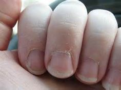 Dry cracked cuticles